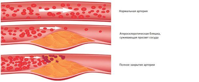 Что такое тромб и почему он отрывается