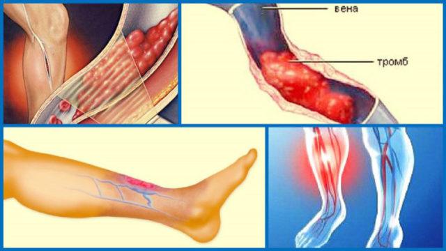 Гиперкоагуляция (повышенная свертываемость крови) приводит к развитию различных патологических процессов, среди которых — тромбофлебит и тромбоз