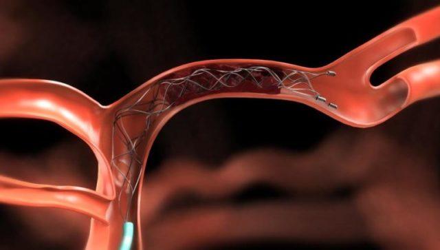 Нередки случаи возникновения кровяных сгустков у женщин во время беременности из-за передавливания увеличенной маткой вен и артерий