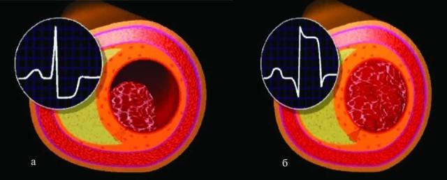 Острый инфаркт миокарда еще совсем недавно подразделялся на две разновидности – крупноочаговый и мелкоочаговый