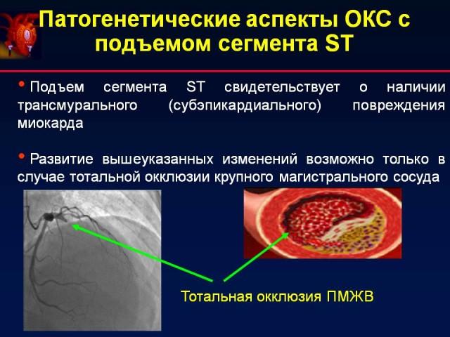 Отсутствие подъема сегмента ST указывает на частичное поражение сердечной стенки мышцы