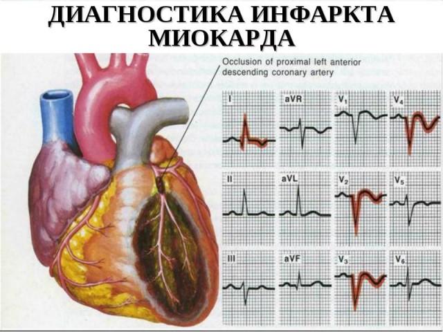 Боль локализуется в грудной области или за грудиной и может иррадировать в руку, челюсть, шею и другие участки тела