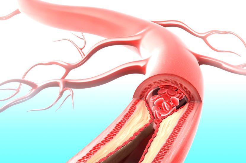 Самые эффективные способы укрепить вены и сосуды на ногах