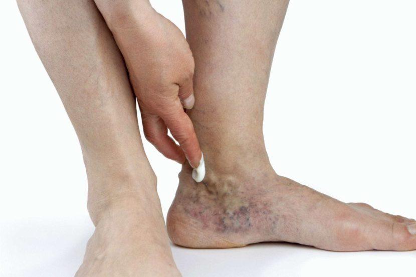 Чем и как лечить язву на ноге