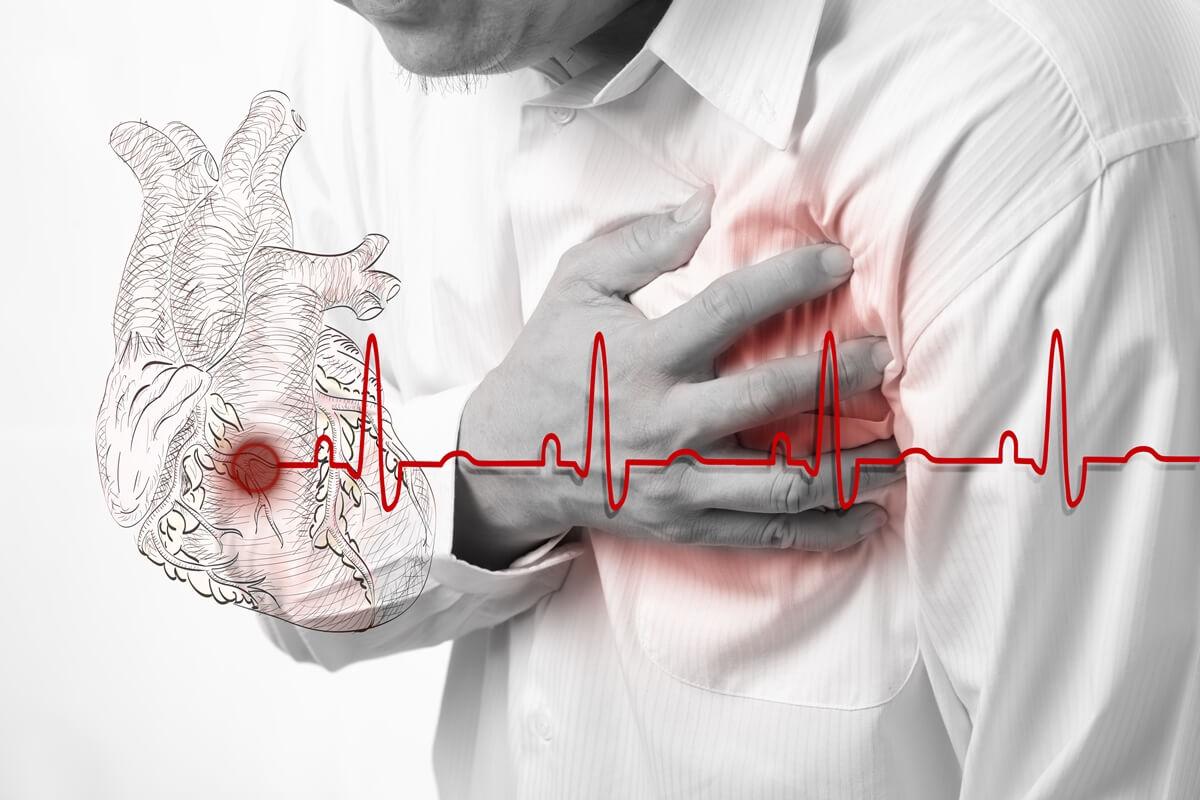 Острый инфаркт без зубца