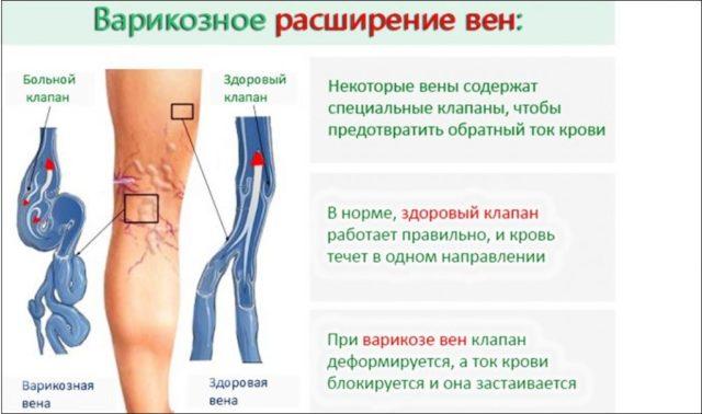 При наличии расширения вен, это может вызвать появление трофических язв или тромбозов (сгустков крови), которые препятствуют свободному движению крови по венозной системе