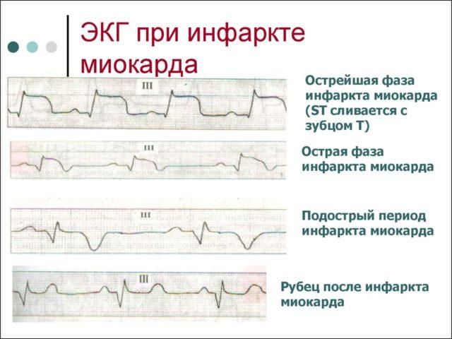 В первые дни инфаркта миокарда высока вероятность разрывов сердечной мышцы