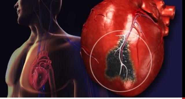Клинически проявляется жгущими, давящими или сжимающими болями за грудиной, отдающими в левую руку, ключицу, лопатку