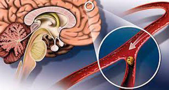 Традиционно (как у молодых людей, в возрасте 20-30-ти лет, так и более пожилых – старше 50-ти) причины развития инсульта могут быть заключены в знакомых многим заболеваниях