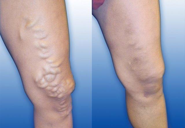 Максимального эффекта можно добиться, используя совместно с утягивающими колготками гель (крем, мазь), рекомендованный врачом