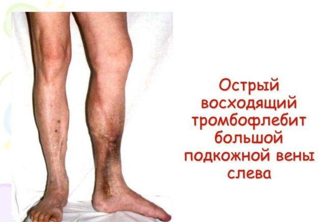 Если не предпринимать меры, то воспаление быстро распространяется по другим сосудам, поражает вторую часть тела