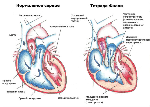 Симптомы, иногда тяжелые, возникают, если тромб из сердца (или его часть) оторвался и с током крови попадает в один из кругов кровообращения