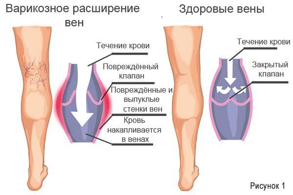 Проявления болезни отличаются в зависимости от локализации патологического процесса