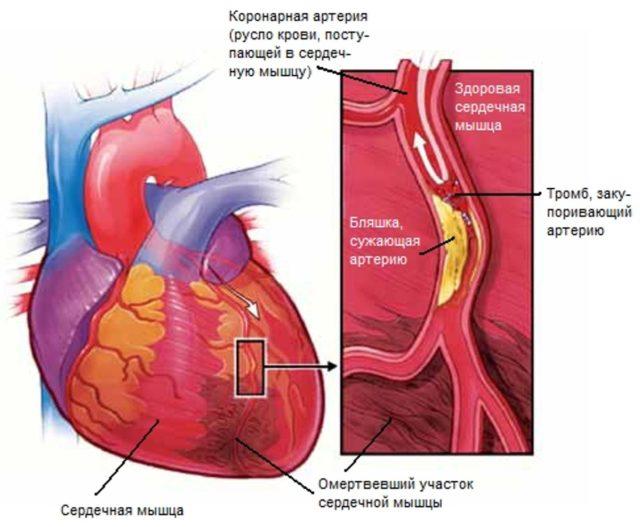 При этом состоянии в каком-либо участке сердца нарушается кровоснабжение, появляется несоответствие между потребностями сердца (миокарда) в кислороде и уровнем сердечного кровотока и поступающего кислорода