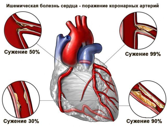 В основе ишемической болезни сердца лежит несоответствие потребности сердца в кислороде с возможностью его доставки