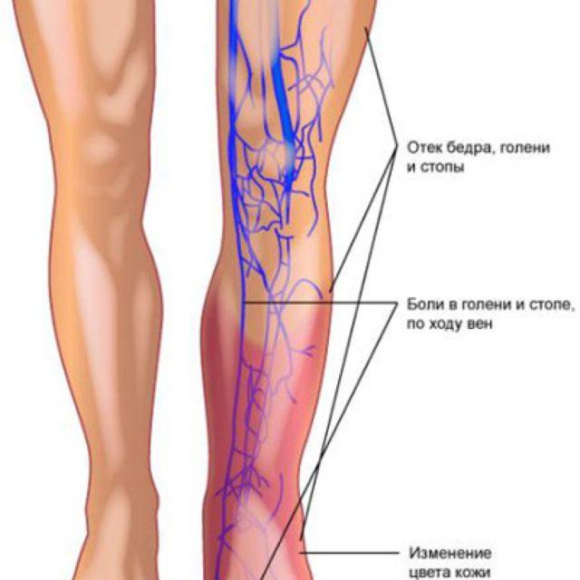 Поражение нижних конечностей может затрагивать как поверхностные, так и глубокие вены