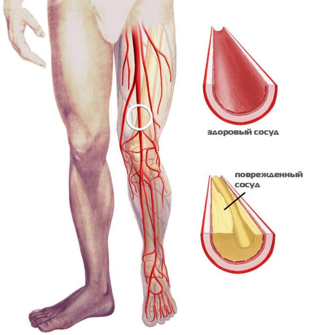 Нарушение тока крови часто вызывает отёк или боль