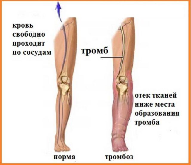 Они представляют собой плотные сгустки крови и чаще образуются на участках, где кровь течёт медленнее: рядом с венозными клапанами, в синусах икроножной и камбаловидной мышц