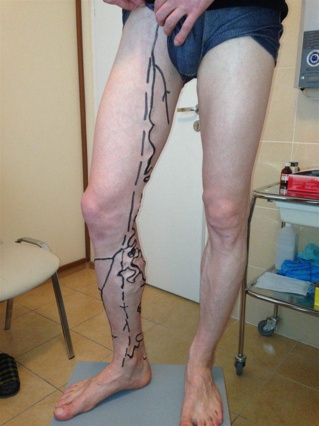 Диагностика ПТФС и тромбоза глубоких вен проводится посредствам ультразвукового ангиосканирования по средствам цветного картирования кровотока