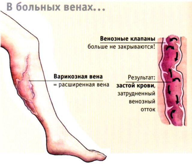 При этом наблюдается значительное нарушение оттока крови и ее застоя в сосудистой системе