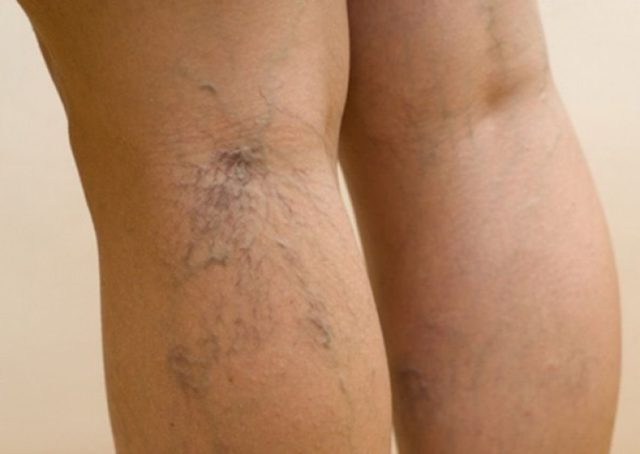 В некоторых случаях данное заболевание является осложнением варикоза