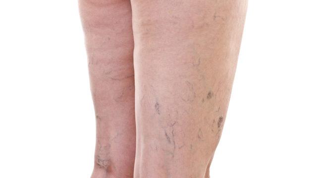 Распространенной причиной является варикозное заболевание вен, вызывающее снижение скорости кровяного потока по венам, что приводит к застою крови в сосудах
