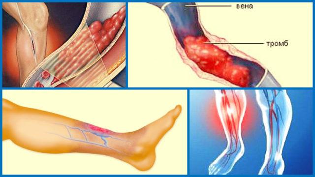 Таково название воспалительного процесса венозных стенок, которое приводит к образованию в венозном просвете тромба