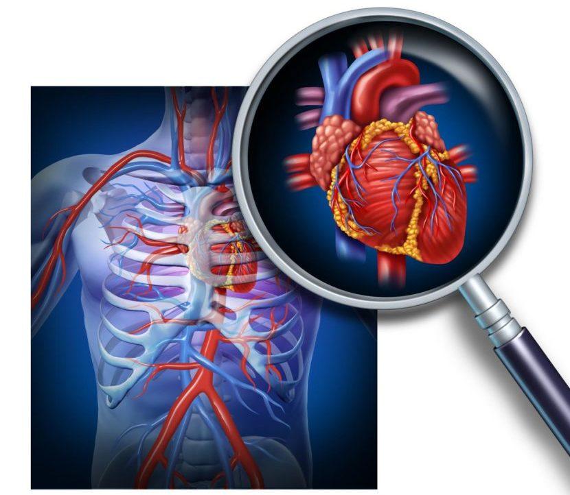 При инфаркте давление повышается или понижается — Cardio