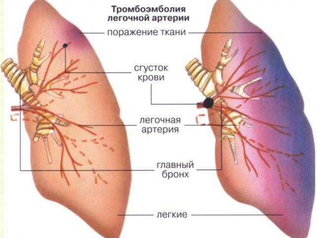 Когда стенка легочной артерии или ее ответвления поражаются воспалительными или склеротическими процессами также возникает тромбоз