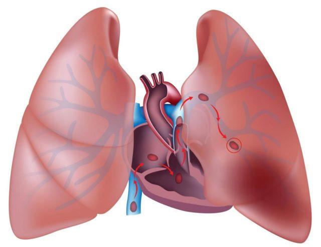 Микроинфаркты легкого могут вообще протекать бессимптомно, и на рентгеновских снимках последствия исчезают уже через неделю