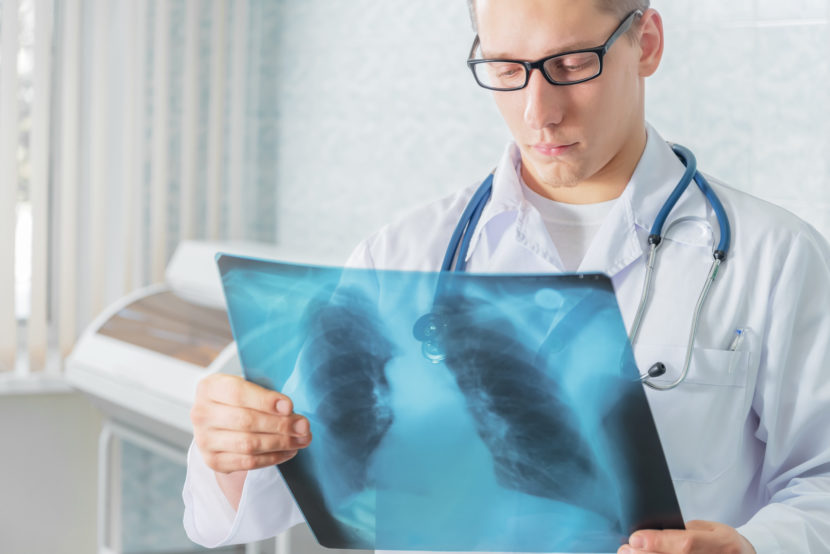 Инфаркт легкого: симптомы, причины и первые признаки