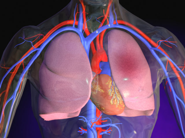 Инфаркт легкого может развиваться из-за тромбоза