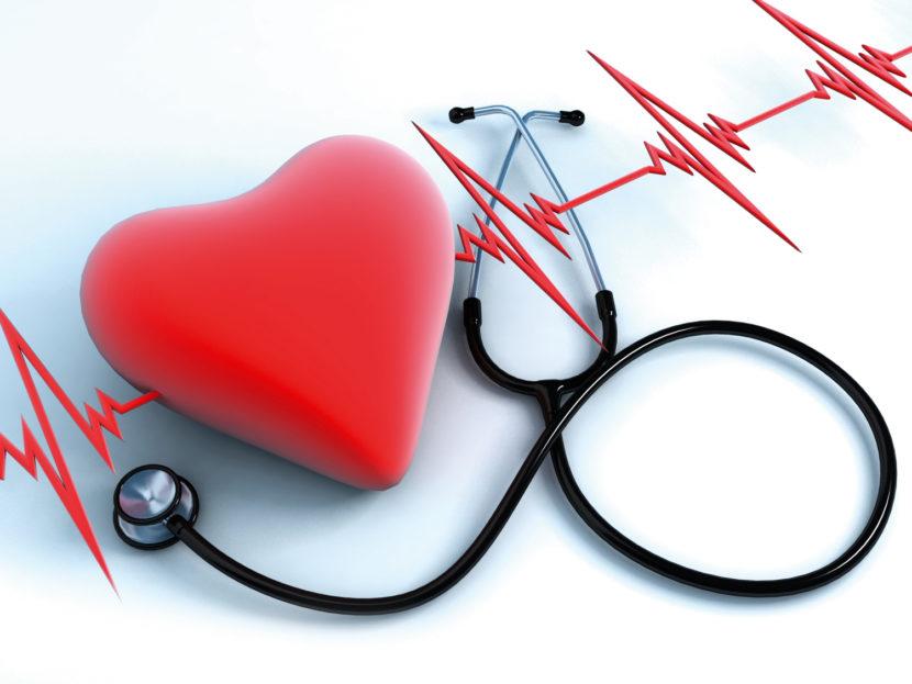 Остановка сердца при остром инфаркте миокарда