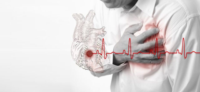 Атеросклеротические бляшки откладываются на стенках сосудов, в том числе и тех, которые кровоснабжают сердечную мышцу (коронарных артериях)