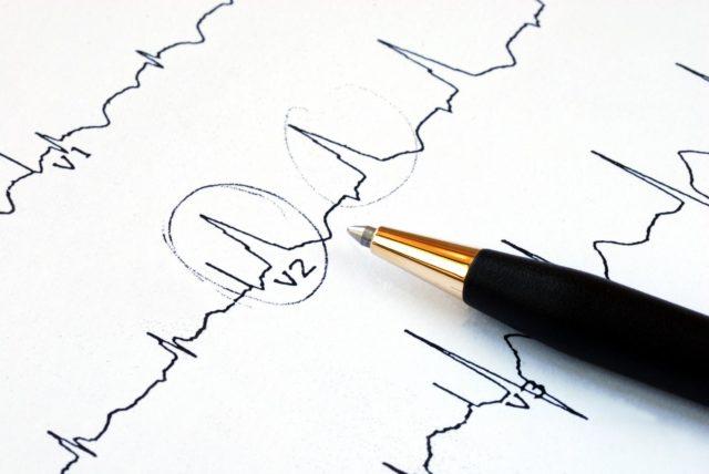 В отличие от крупноочаговых, при мелкоочаговых инфарктах не возникают аневризма и разрыв сердца
