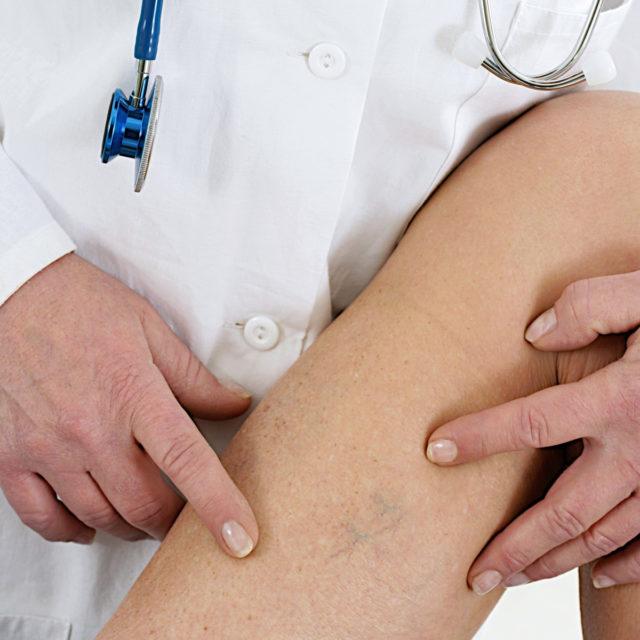 Поэтому, обнаружив у себя сосудистые звездочки на ногах, необходимо обратиться к специалистам для устранения причины их появления