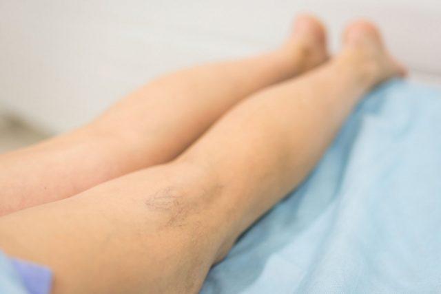 Мелкие сосуды, под воздействием определенных факторов, начинают расширяться, вздуваться в тонком слое дермы и появляются на поверхности кожи