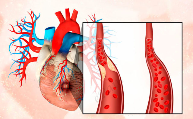 Инфаркт или некроз сердечной мышцы проявляется в результате ишемической болезни сердца