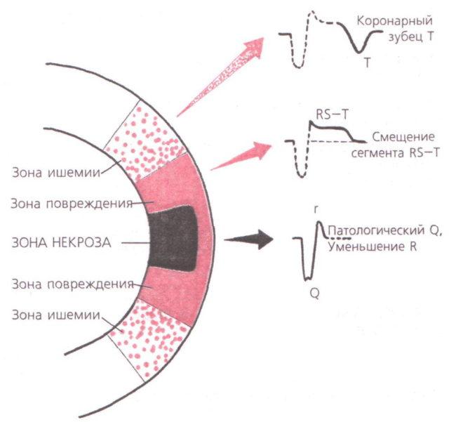 Принцип электрокардиографии основан на фиксации электрических потенциалов различных участках сердца