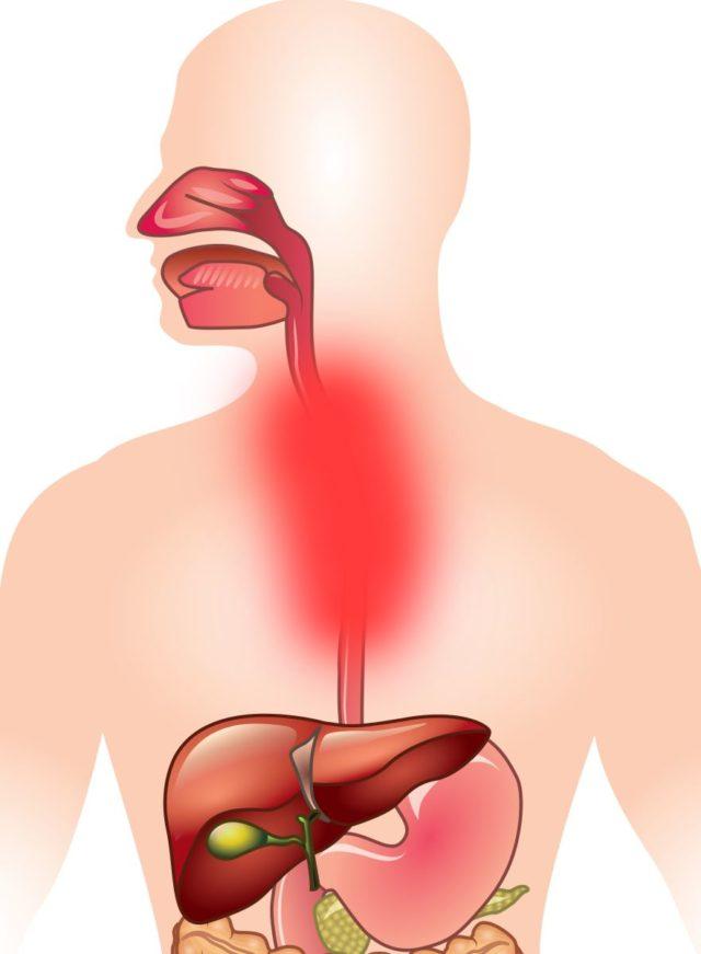 Если же варикоз вен пищевода прогрессирует, то в течение нескольких дней (до момента открытия кровотечения) человек может ощущать тяжесть в груди