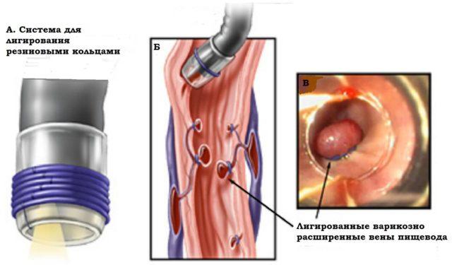 Большое значение также имеет профилактика возникновения или лечение существующего рефлюкс-эзофагита