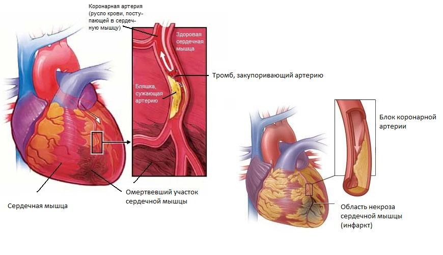 Инфаркт начинается в тот момент, когда перестает поступать кровь к какому-либо из отделов сердечной мышцы