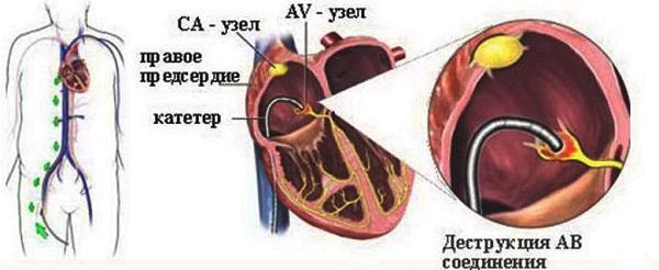 РЧА проводят в тех случаях, когда у человека имеется осложненная мерцательная аритмия