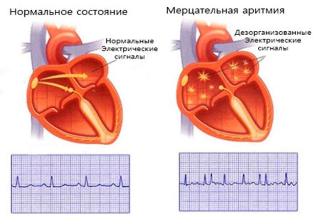 Может развиться рестриктивная, а потом и дилатационная кардиомиопатия
