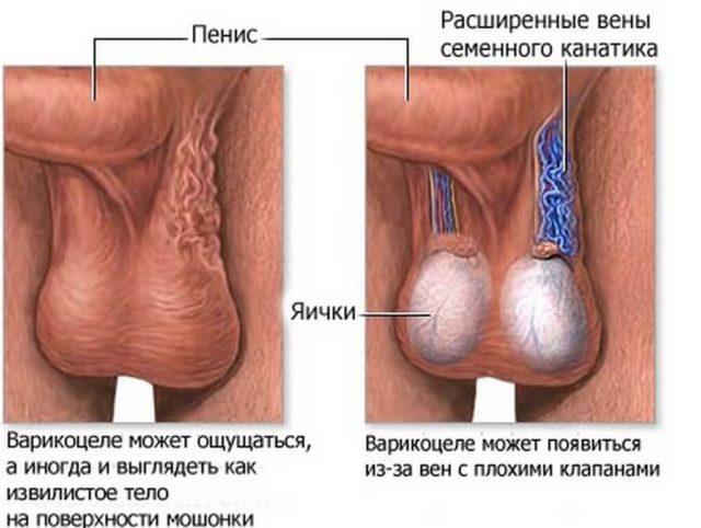 2 степень - расширенные вены прощупываются и в положение стоя, и в положение лежа