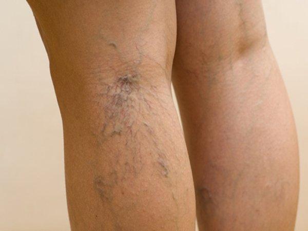 Заболевание в основном поражает женщин, у мужчин встречается редко