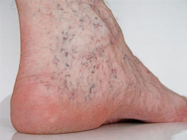 Сосудистые заболевания ног связаны с их деформацией, расширением, закупоркой, сужением, воспалением