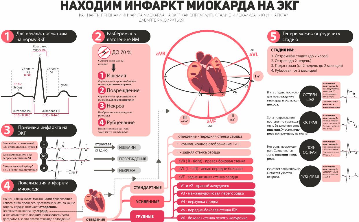 ЭКГ, УЗИ сердца, коронарография и другие методики позволяют быстро и с большой долей вероятности установить правильный диагноз