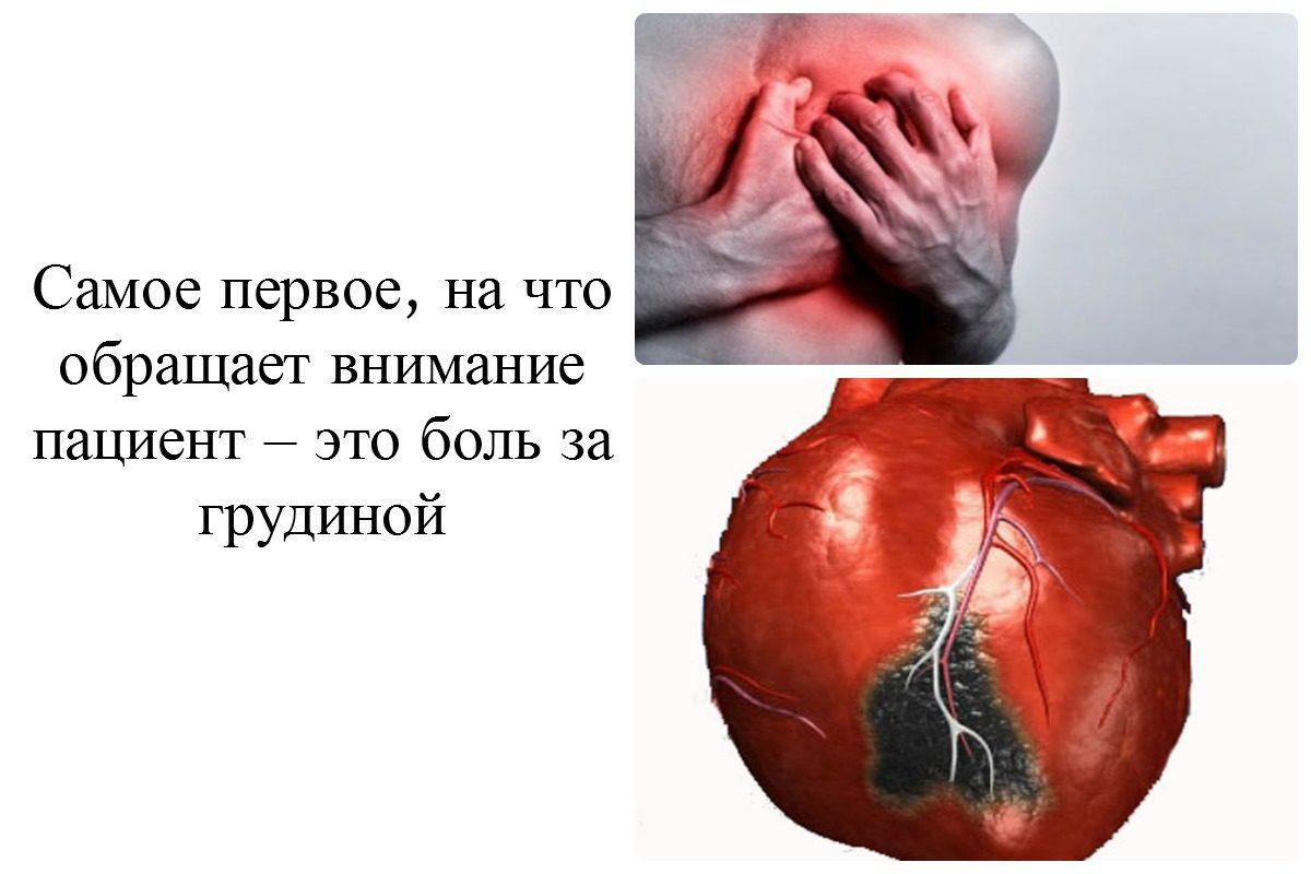 может ли при инфаркте болеть живот