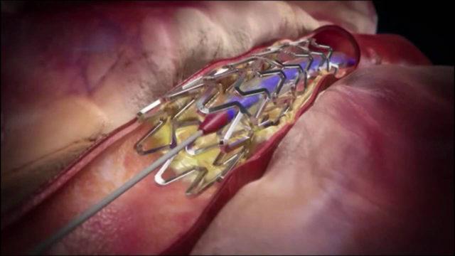 Развивается инфаркт миокарда на фоне закупорки кровяным сгустком (тромбом) коронарной артерии